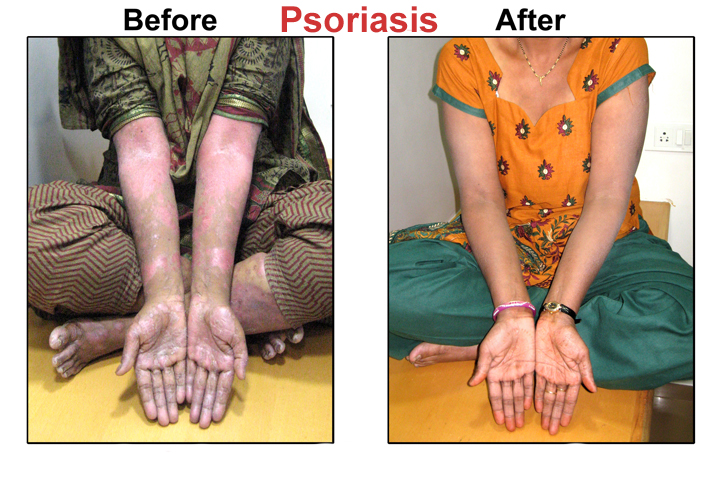 Leading a sedentary life will aggravate the psoriasis further 2