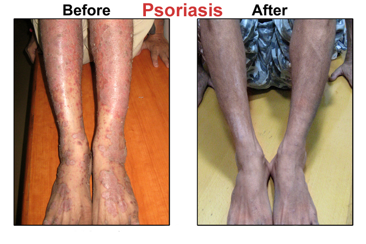 Laird N (1994) The carcinogenic risk of treatments for severe psoriasis 3